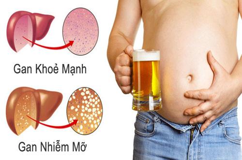Gan bị ảnh hưởng bởi tác hại của rượu bia