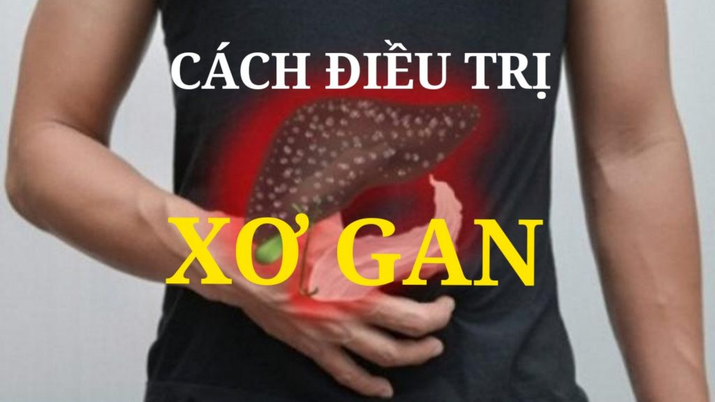 Cách phòng bệnh Xơ Gan