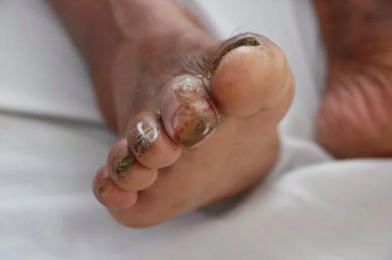 Ngón thứ 2 bàn chân phải của bệnh nhân lở, loét được nghi ngờ là vị trí để vi khuẩn Burkholderia Pseudomallei xâm nhập vào cơ thể người bệnh