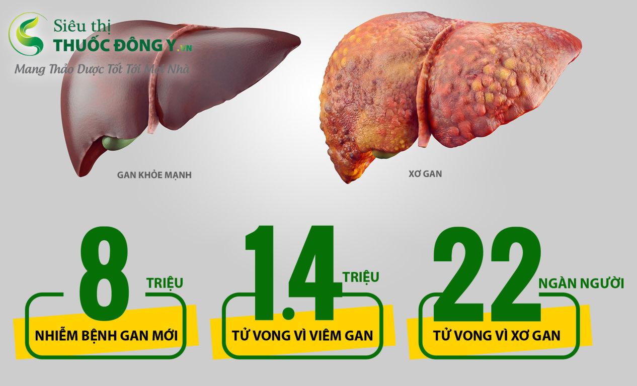 Mua thuốc trị bệnh gan ở Tp.HCM