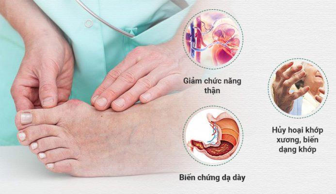 Bệnh gout có thể gây ra nhiều biến chứng nguy hiểm nếu không chữa trị kịp thời