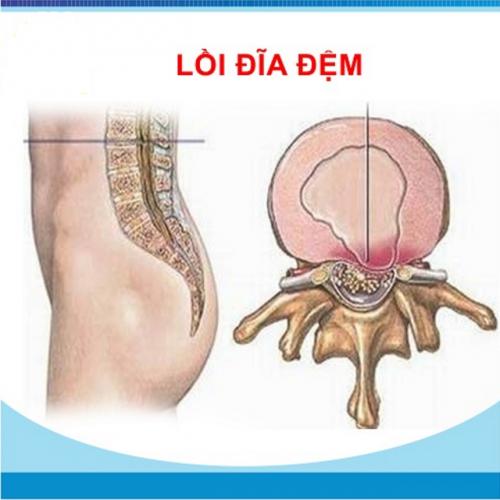lôi-dia-dem