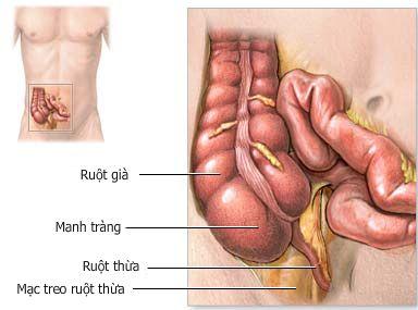 Triệu chứng của bệnh viêm manh tràng