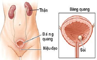 benh-viem-bang-quang