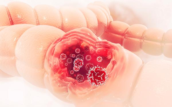 Chẩn đoán ung thư đại trực tràng như thế nào?