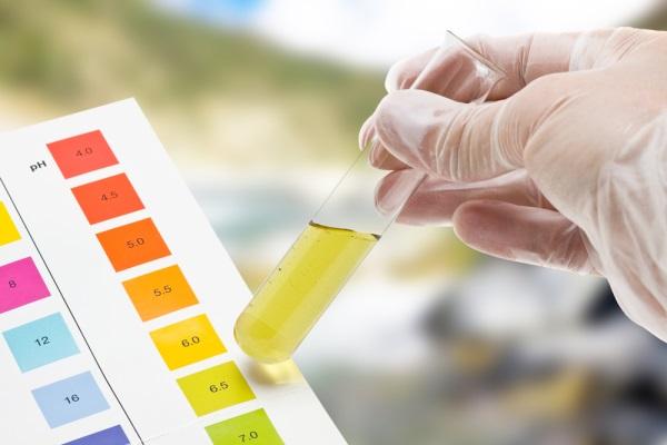 Nhận kết quả xét nghiệm nước tiểu