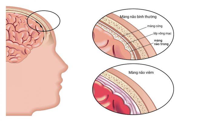 Viêm màng não là gì