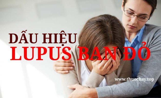dấu hiệu bệnh lupus