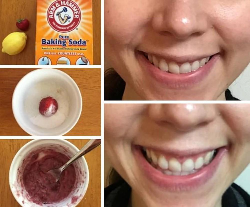 Tẩy trắng răng bằng bột baking soda