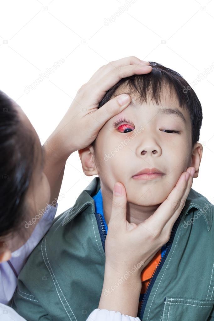 Khám bệnh đau mắt đỏ